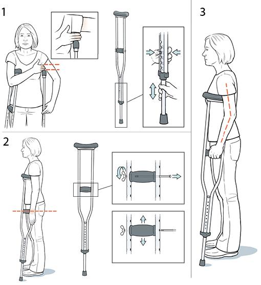 Регулировка подмышечных костылей